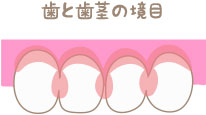 歯と歯茎の境目